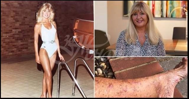 """""""Никога не съм мислила, че ще получа рак на кожата"""" Бивша кралица на красотата предупреждава за """"перфектния"""" бронзов тен"""
